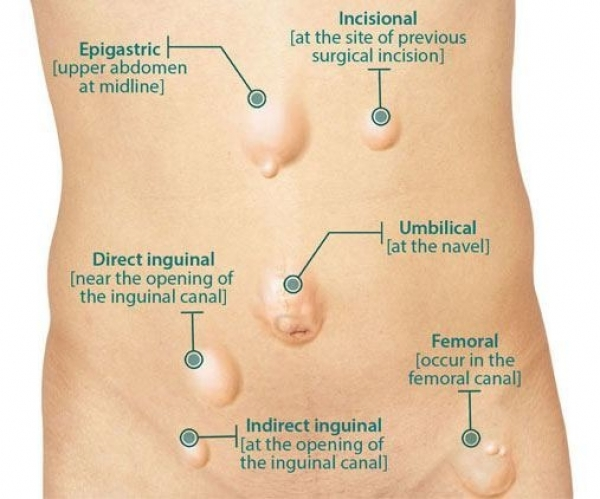 Laparoscopic Hernia Repair Surgery Through Our Specialist
