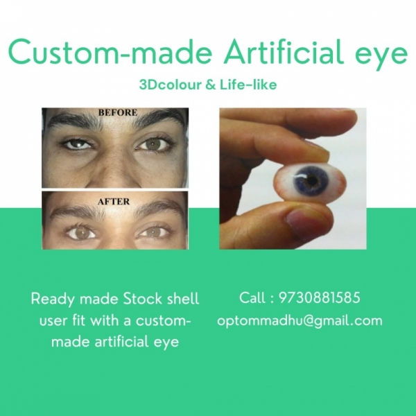 custom made Artificial eye for damaged eye, ocular prosthesis, cosmtic eye shell