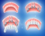 Full Mouth Dental Implant Treatment Clinic In Indi