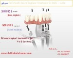 Top Full Mouth Implant Dentist In Delhi