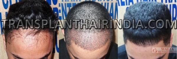 Head hair transplant